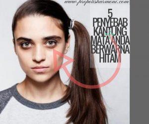 5 penyebab kantung mata anda berwarna hitam